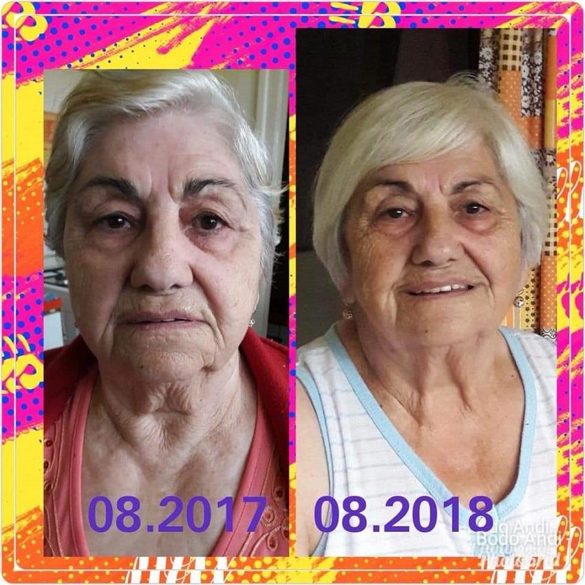 kết quả age pill từ bà 80 tuổi