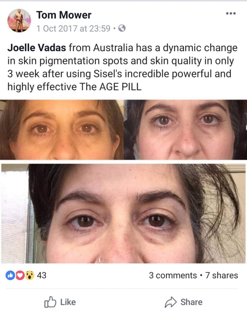 nếp nhăn đã biến mất sau khi dùng age pill