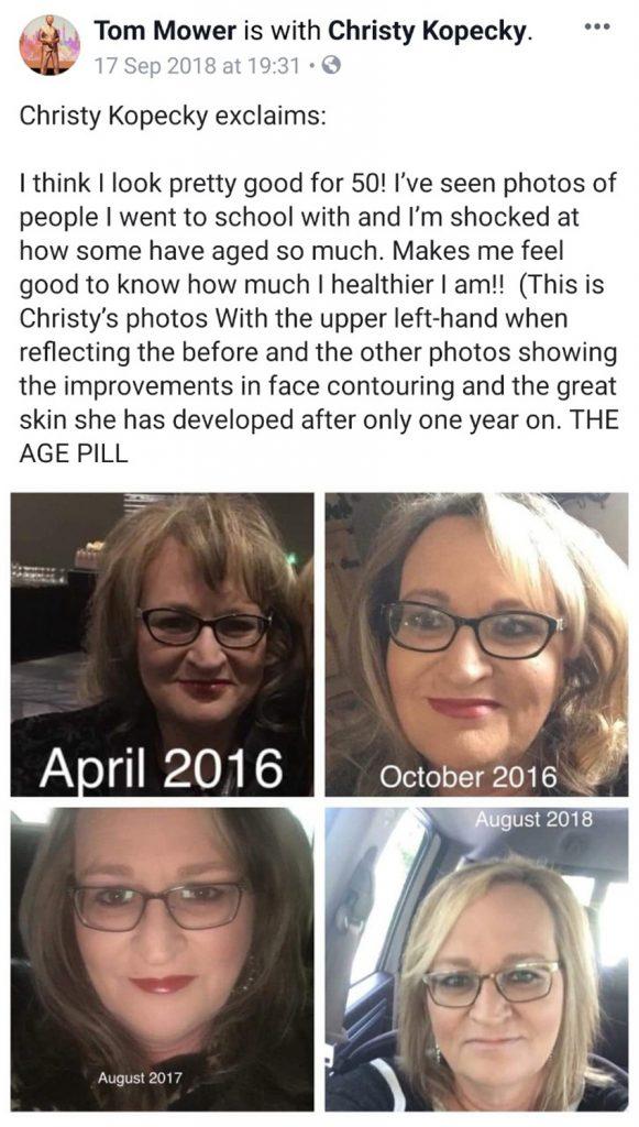 sự khác biệt quá lớn sau 4 năm kể từ khi dùng age pilll
