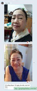 Da của cô Lan tươi trẻ hơn sau 10 ngày sử dụng the age pill